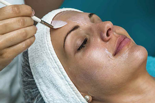 Chemical peels give excellent results at Celestial Esthetics located in Denver Colorado.